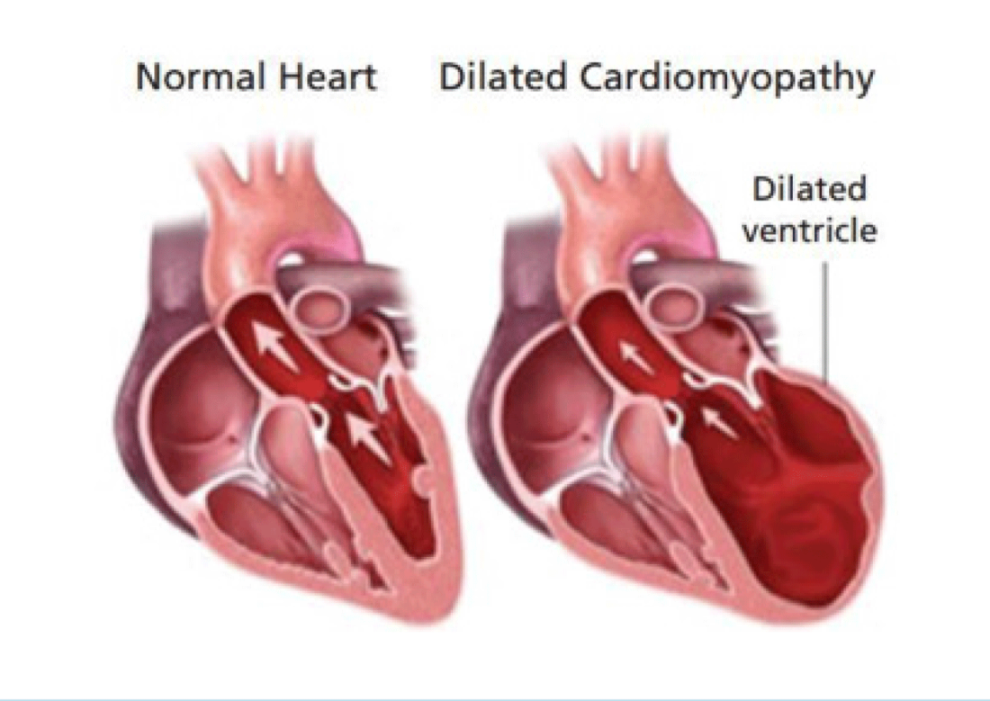 cardiomyopathy in dogs